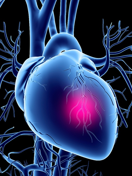 Chronic Heart Failure Drug Sales Expected to Soar