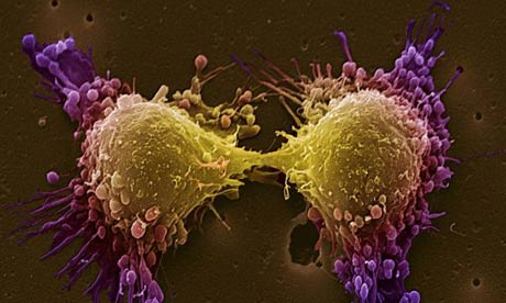 Pancreatic Cancer Global Market Expected to Hit $1.6 Billion by 2017